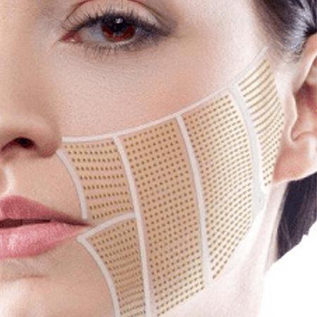 Depilación Facial en láser sevilla